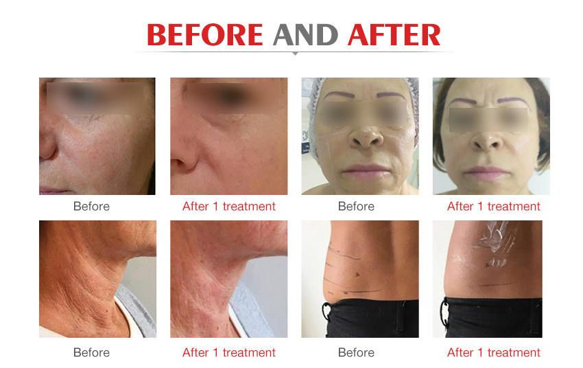 Professional focused ultrasound hifu slimming face lifting beauty